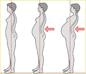 Chiropratica e gravidanza 02